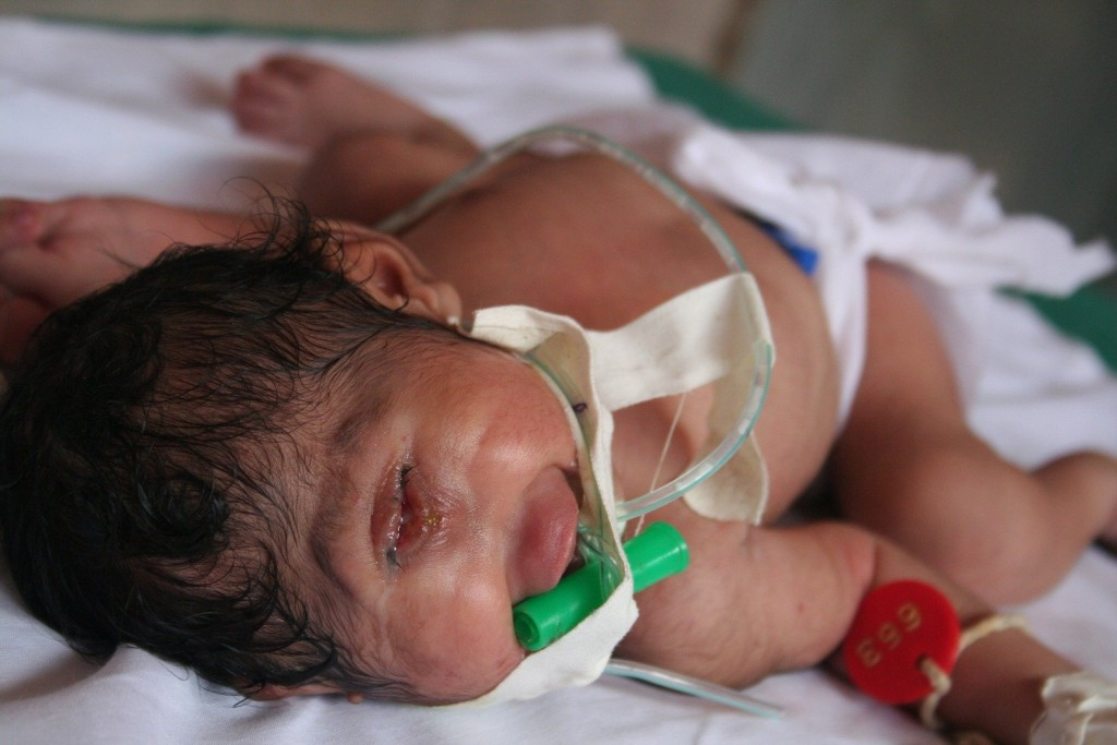 Baby Born With Only One Eye Lives Just A Few Days