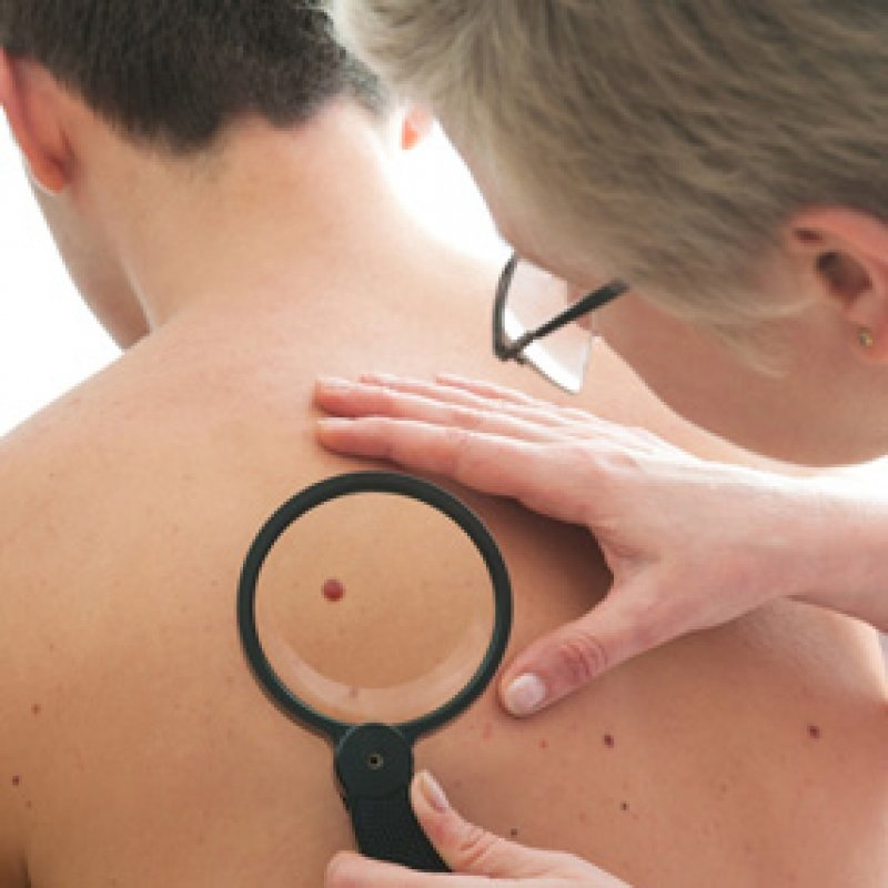 Researchers May Have Found A Cure For Melanoma