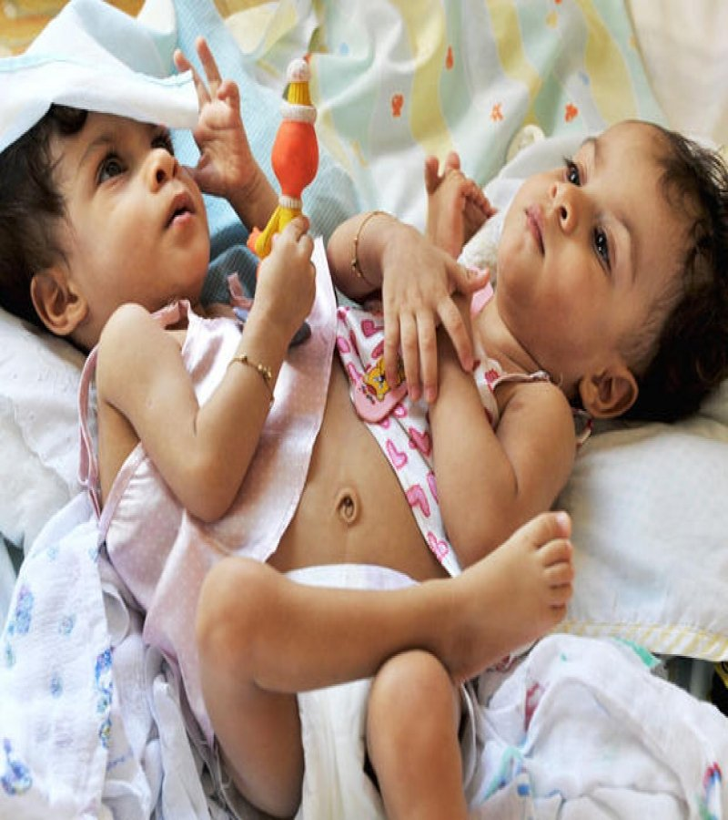 12 Insane Photos Of Conjoined Twins