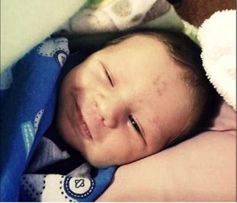 This Little Boy Was Born With An Unusual '12' Birthmark On His Forehead