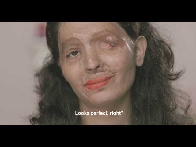 Shocking Makeup Tutorial Featuring Acid Attack Victim