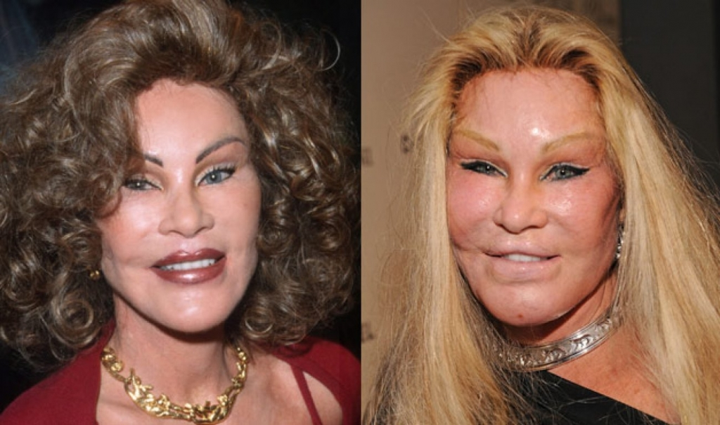 10 Celebrities Who Were Almost Unrecognisable After Plastic Surgery