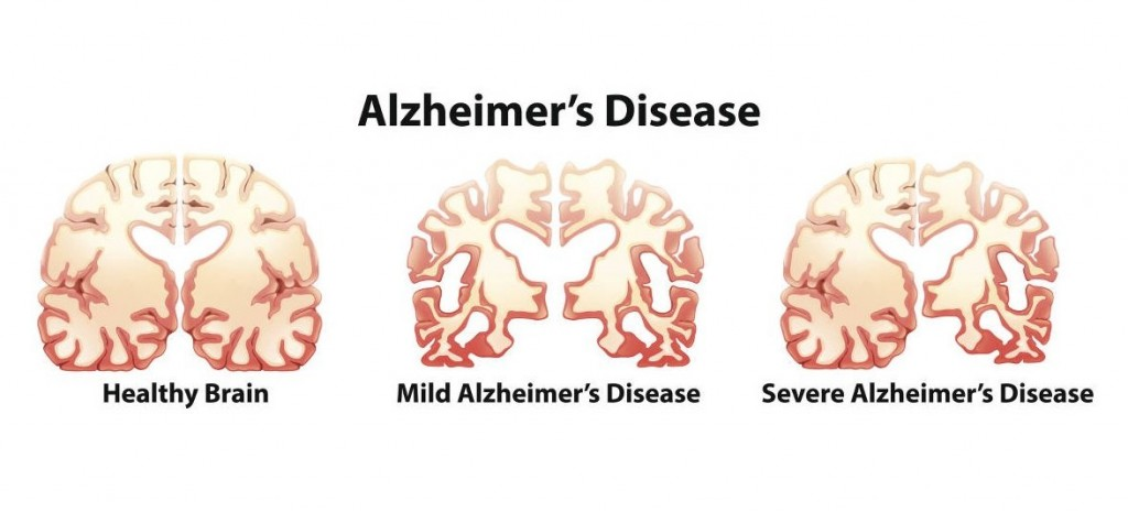 the facts and stages of alzheimers disease 1 fact about alzheimer's that remains a mystery alzheimer's world and the positive that comes with it does the combination of aricept and namenda slow the rate of decline in alzheimer's patients citation publisher alzheimer's reading room author carol blackwell november.