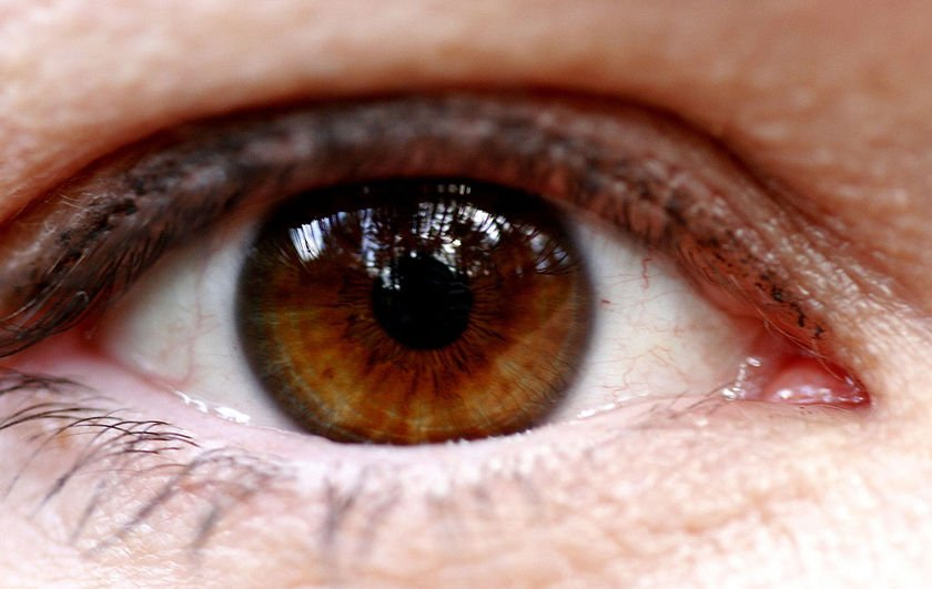 10 Of The Most Common Eye Problems In The World